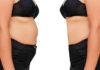 Co warto wiedzieć o zabiegu odsysania tłuszczu
